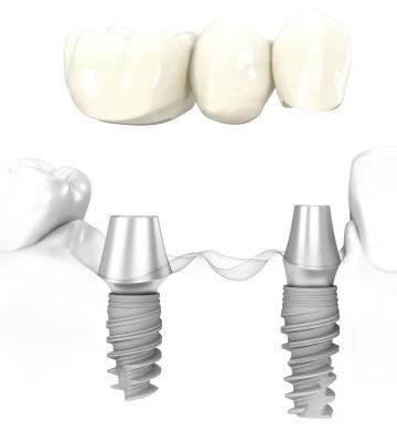 отбеливание зубов калуга